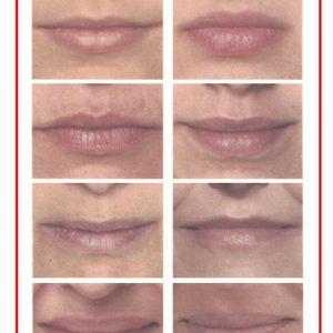 Oefenhuid lippen
